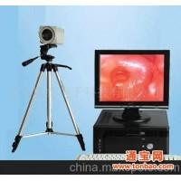 电子阴道镜/数码阴道镜检测系统