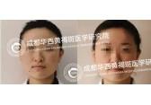 成都祛斑美容:女人如何淡化脸上的黄褐斑